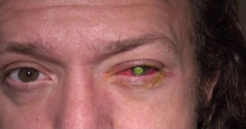 0c147a4dfa Cuidado! Esto es lo que te podría pasar si te duermes con tus lentes ...